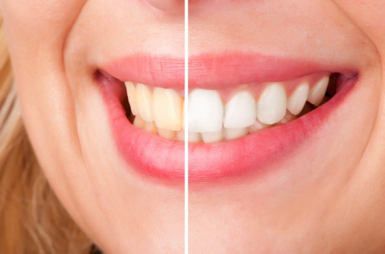 pearly whites Before use and after use